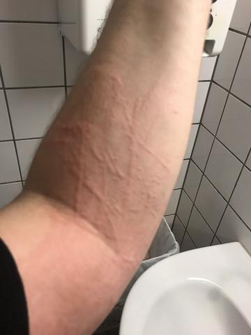 Hautausschlag was soll ich machen?