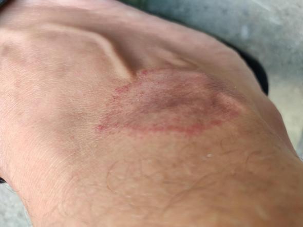 Hautkrankheit, rote Flecken am Bein?