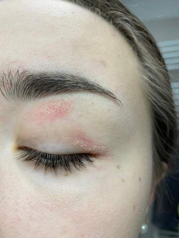 Hautveränderung am oberen Augenlid?
