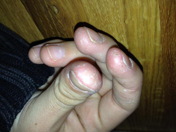 meine rechte Hand & die drei betroffenen Finger - (Schmerzen, Haut, Arzt)