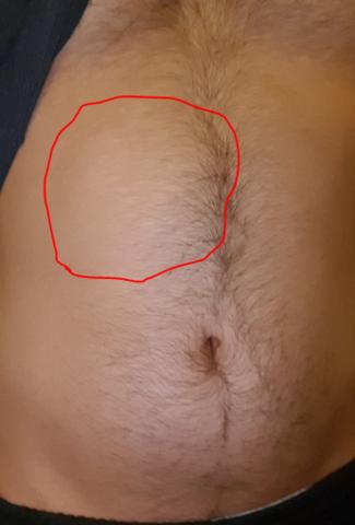 Hernie auf dem Bauch?