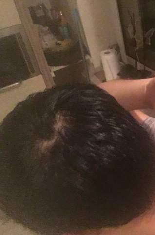 Hey Leute ist meine Wirbel normal oder sieht das nach Haarausfall aus?