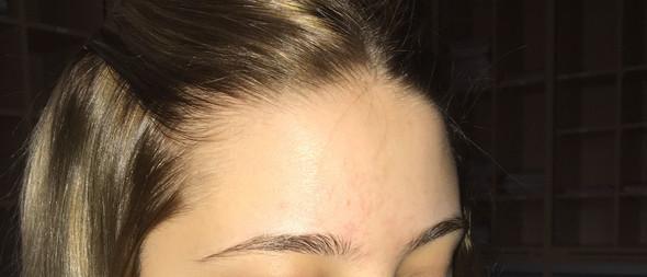 """Ich habe seit kurzem wieder solche """"Pusteln"""" auf der Stirn - Sie kamen in meiner Pillenpause über Nacht - Pille = Bellgyn! Kann mir jemand helfen?"""