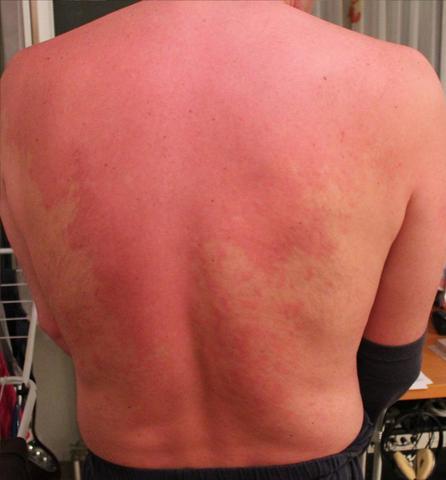 Bild 1 - (Allergie, Ausschlag, Hautausschlag)