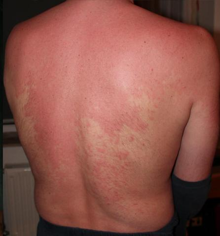 Bild 2 - (Allergie, Ausschlag, Hautausschlag)