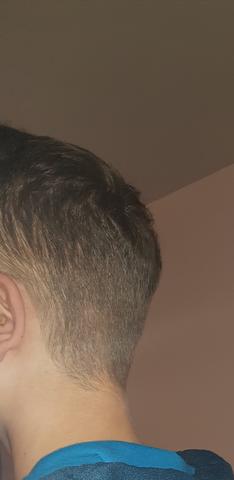 Hilfe habe ich meinen Kopf deformiert?