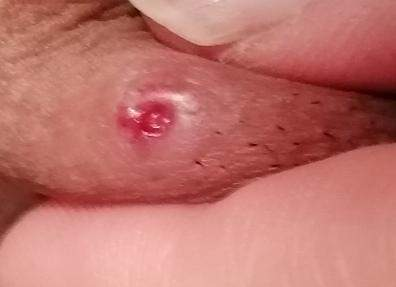 Pickel geschlechtskrankheit Vaginale Pickel: