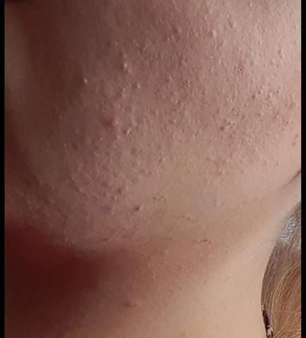 Hilfe! Meine Haut?