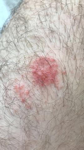 Hier ist es gut zu erkennen: es sieht nach kleinen aufgeplatzten Pusteln aus... - (Haut, Jucken, Hautkrankheit)