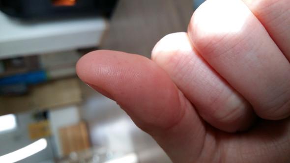 Schwarze Punkte auf den Fingerkuppen: Was ist das?