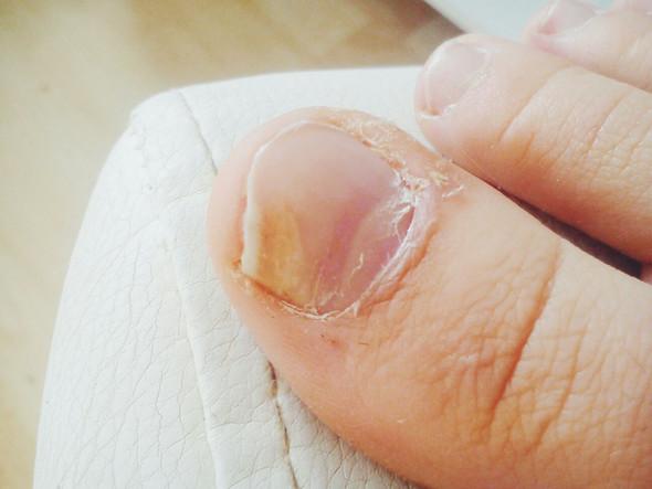 Betroffener Nagel - (Pilze, Fußpilz, Nagelpilz)