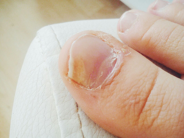 Ich glaube ich habe Nagelpilz. Kennt jemand ein gutes Hausmittel (Achtung mit Bild)?