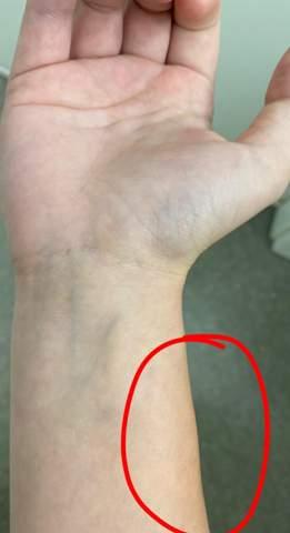 Ich habe eine Schmerzlose schwellung am Rechten Arm ist das krebs/ein Tumor?