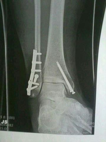 Röntgenbild  - (Füße, Schwellung, Orthopäde)