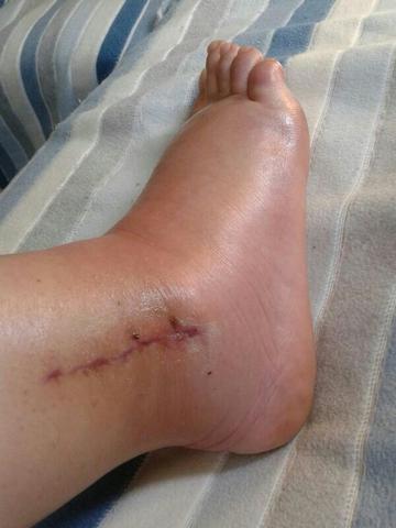 Fuß wie es so heiß war - (Füße, Schwellung, Orthopäde)