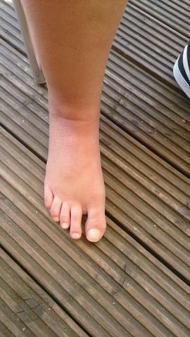Fuß jetzt vorne  - (Füße, Schwellung, Orthopäde)