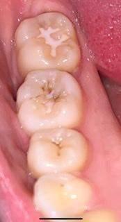 - (Zähne, Zahnarzt, Zahnpflege)