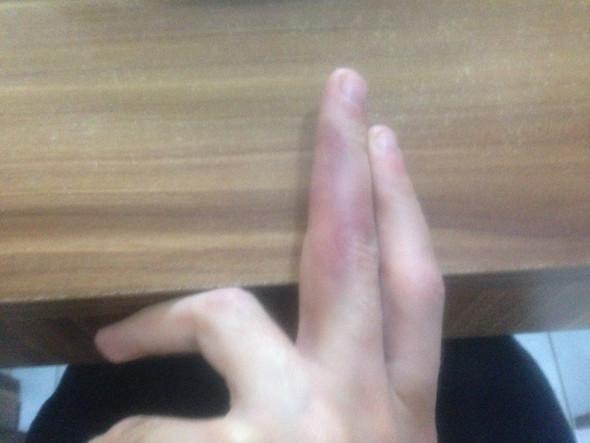 Bild 1 - (Finger, Hämatom)