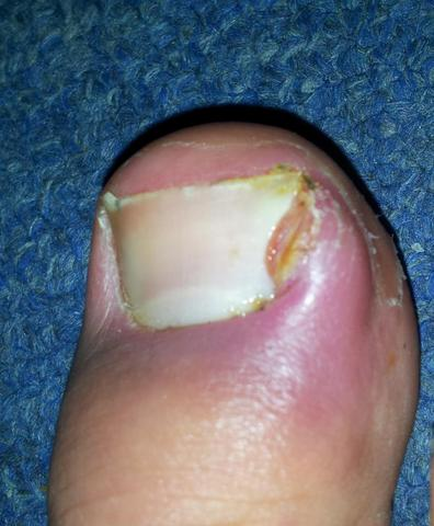 Großer Zeh1 - (Füße, Medizin, Befund)