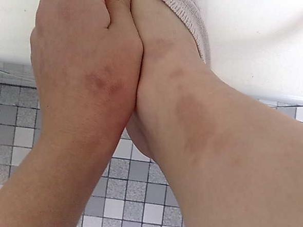 das sieht richtig schlimm aus.. - (Füße, Flecken, Hautkrankheit)