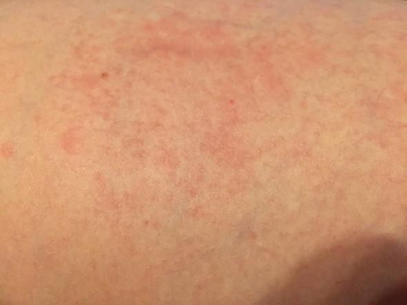 Ist das eine Kontaktallergie (mit Bild)?