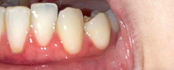 Ist das eine Zahnfleischentzündung oder nicht?