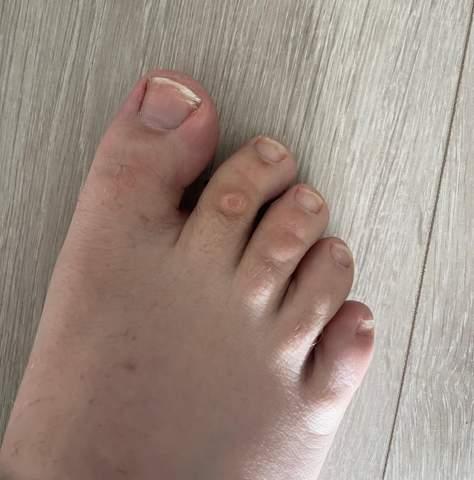 Ist das etwas gefährliches an meinem Fußzeh oder nur eine Warze/Hornhaut oder ähnliches?