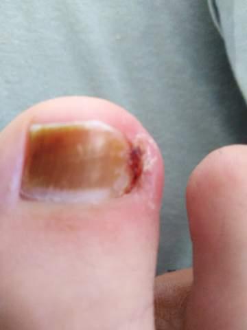 - (Füße, Zeh, Nagelbettentzündung)