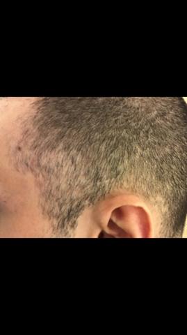 Ist das Kreisrunder Haarausfall?