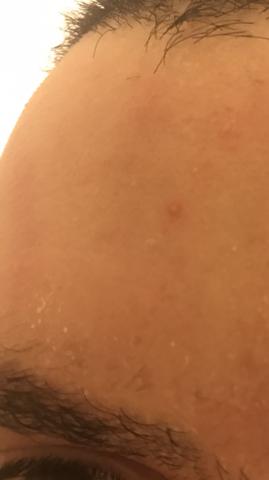 Ist das Seborrhoische Dermatitis?