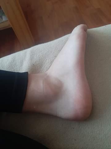 Ist der Fuß noch geschwollen?