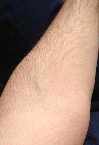 Ist diese schwarze Ader auf meinem Arm normal wenn ich Hanteltraining mache?