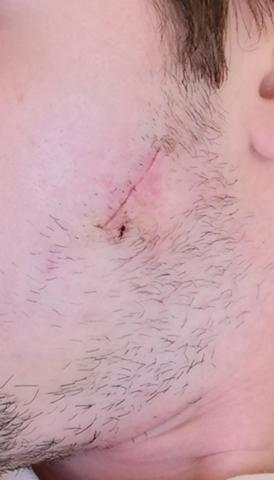 Ist diese Schwellung an meiner Narbe normal?