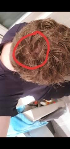Ist es normal, dass man in bestimmtem Licht hinten die Kopfhaut sehen kann?