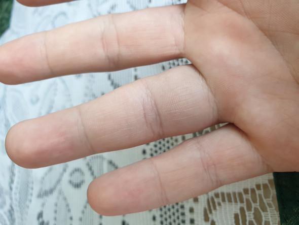 Ist mein Finger verstaucht oder...?