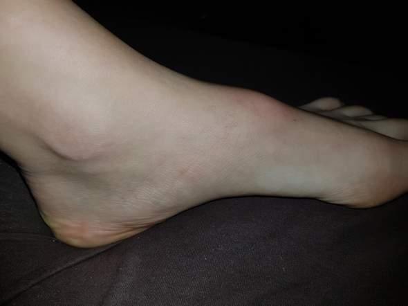 Ist mein Fuß gebrochen oder nur angeschwollen?
