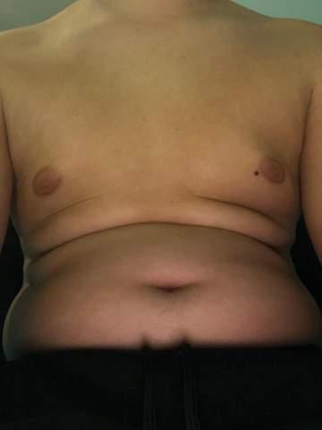 Ist mein Übergewicht schlimm?