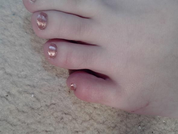 Ist Mein Zeh Verstauchtgebrochen Füße Bruch