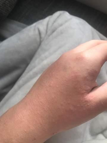 Juckende Pickel an der Hand?