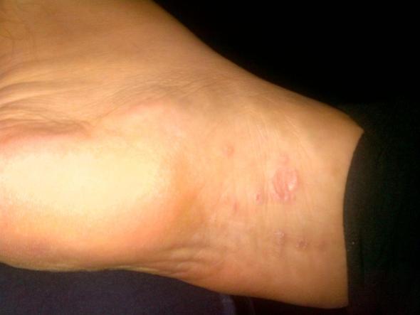 Fuß - (Füße, Hand, Ausschlag)