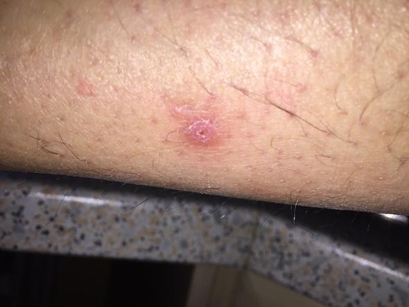 Vom 3. Oktober - (Haut, Dermatologie, Hautkrebs)