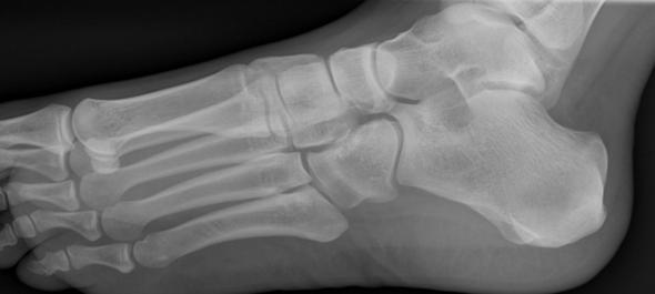 Kahnbeinbruch Fuß?