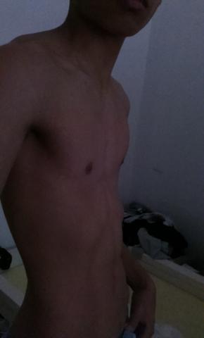 da spann ich meine bauchmuskel an  - (muskelaufbau fuer trichterbrust, trichter brust wegtrainieren)