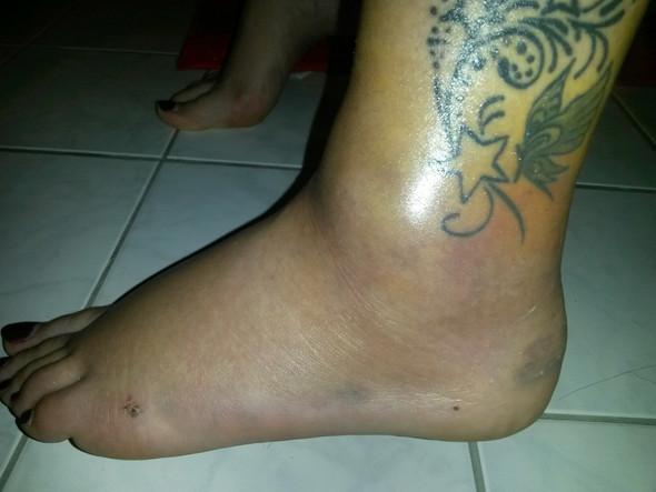 Fuß2 - (Schmerzen, Füße, Körper)