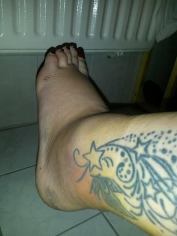 Fuß3 - (Schmerzen, Füße, Körper)