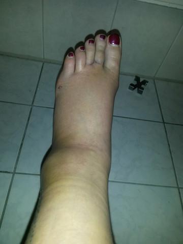Fuß4 - (Schmerzen, Füße, Körper)