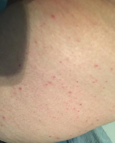 - (Haut, Allergie, Dermatologie)