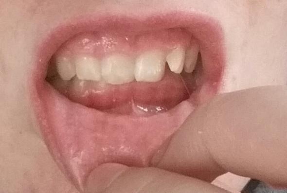 Meine Zähne  - (Zähne, Gebiss)