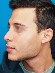 Kieferwinkel nicht sichtbar-Kiefer-Hals-Übergang (Gesicht)