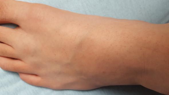 Ganzer Fuß - (Füße, rote Punkte)